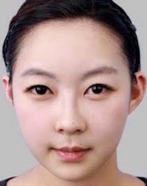 Skull Reshaping? The Intriguing World Of South Korean Plastic
