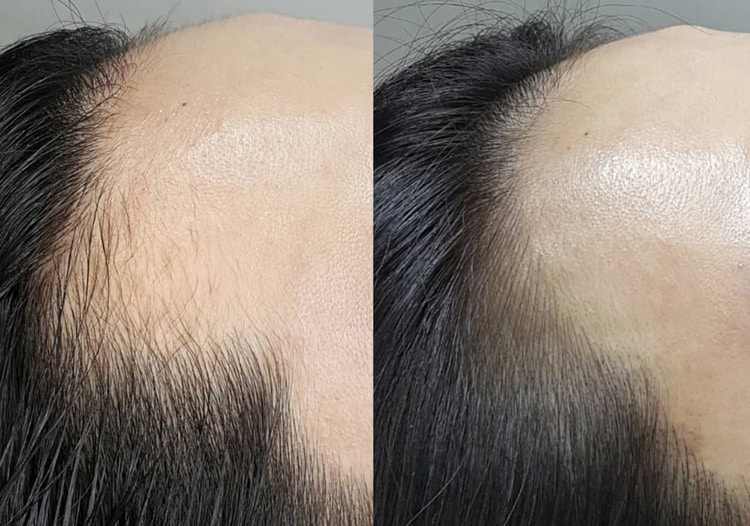 The Hairline Procedure Taking The Beauty World By Storm - Beauticate